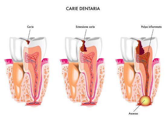Carie Dentaria - Dentax
