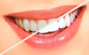 Sbiancamento dei denti - Dentax Studio