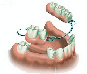 protesi mobile scheletrata - 2